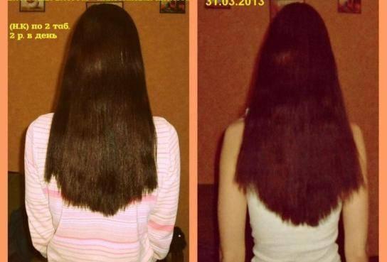 Что делать, чтобы волосы на голове росли быстрее
