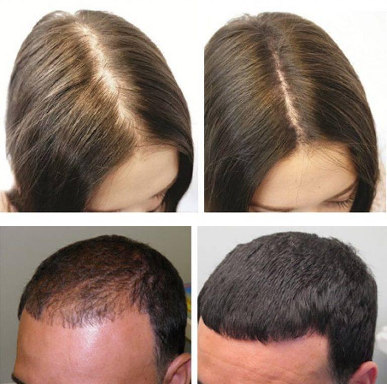 Маска для волос с димексидом: рецепт и особенности применения