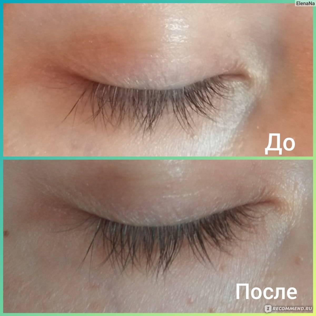 Применение кокосовое масло в косметологии: для тела, волос, лица - орех эксперт