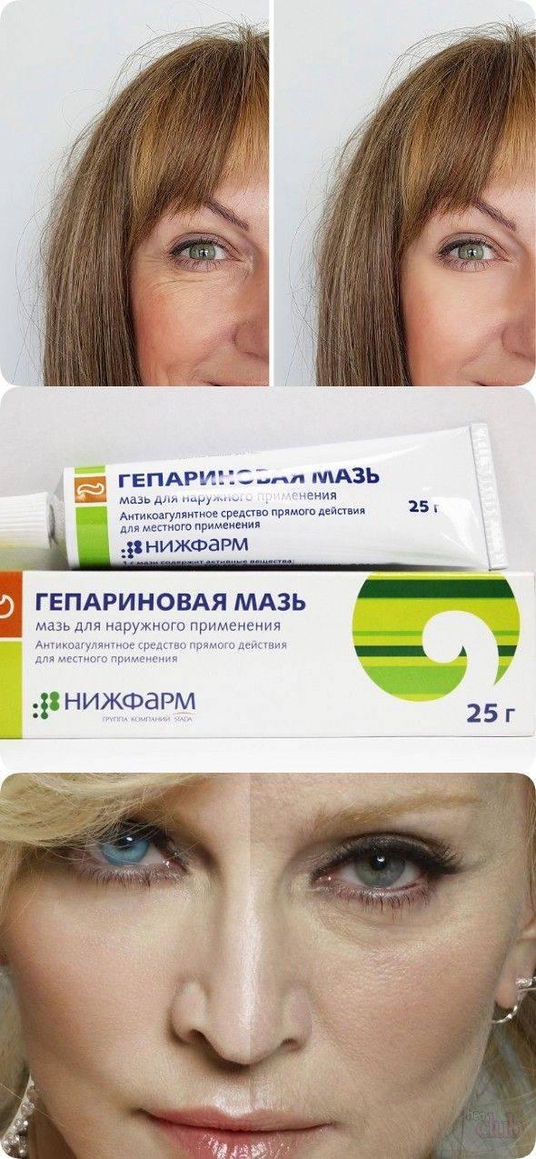 гепариновая мазь отзывы косметологов