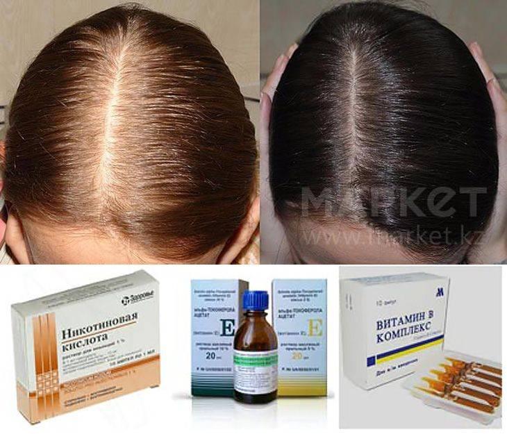 Обзор лучших витаминов от выпадения волос для приема внутрь и втирания в кожу