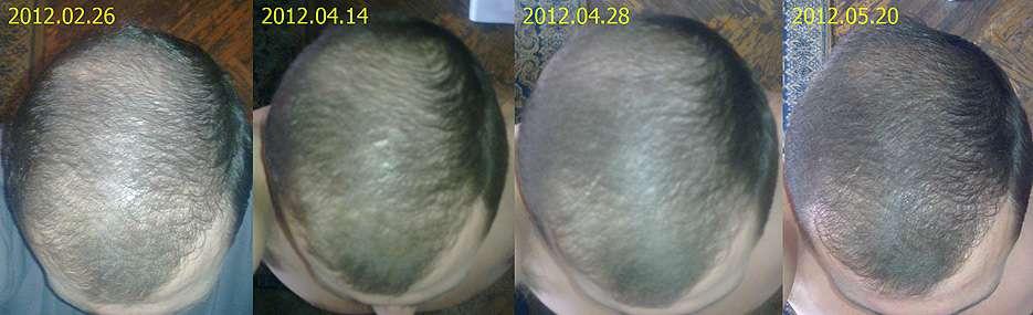 Как быстро восстановить волосы после химиотерапии
