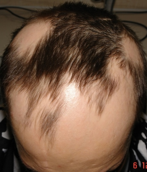Очаговая алопеция у детей - причины и лечение лысины, как выглядит на фото