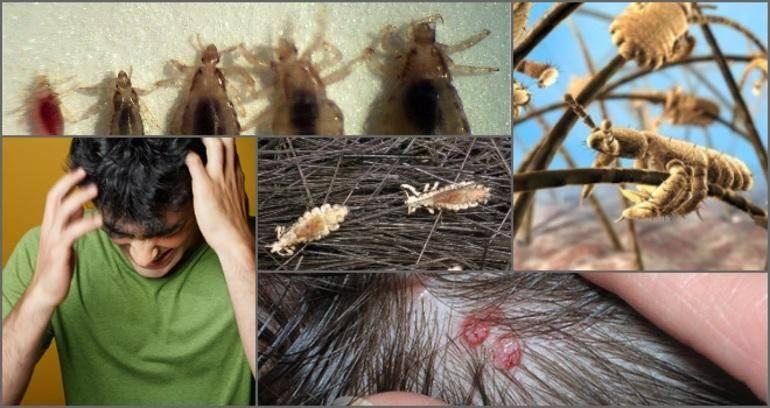 Как быстро размножаются вши после заражения и какие условия для этого нужны