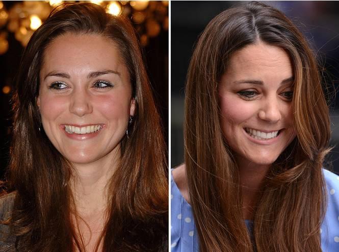 Кейт бекинсейл. фото до и после пластики, горячие в купальнике, без макияжа, рост, вес, биография