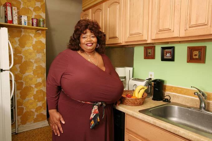 Самая большая грудь и проблемы, которые она вызывает