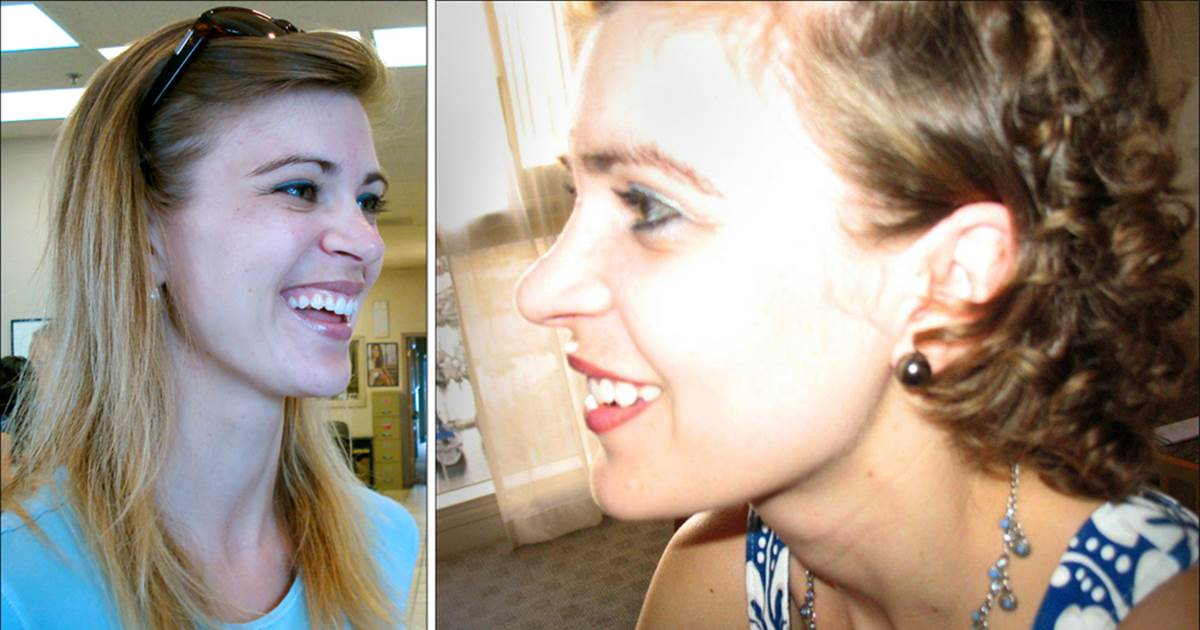 Через сколько вырастают волосы после химиотерапии