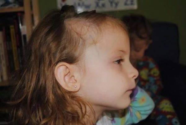 Алопеция у детей: причины возникновения и способы лечения