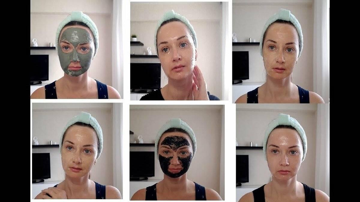 Янтарная кислота в домашней косметологии от морщин для лица, под глазами, от прыщей, пигментных пятен и веснушек, для омоложения: рецепты масок, пилинга, тоника, фото до и после, отзывы косметологов и пользователей