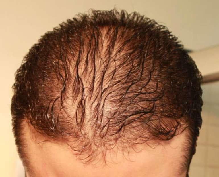 Выпадение волос простатите может ли быть инфекция простатита у женщин