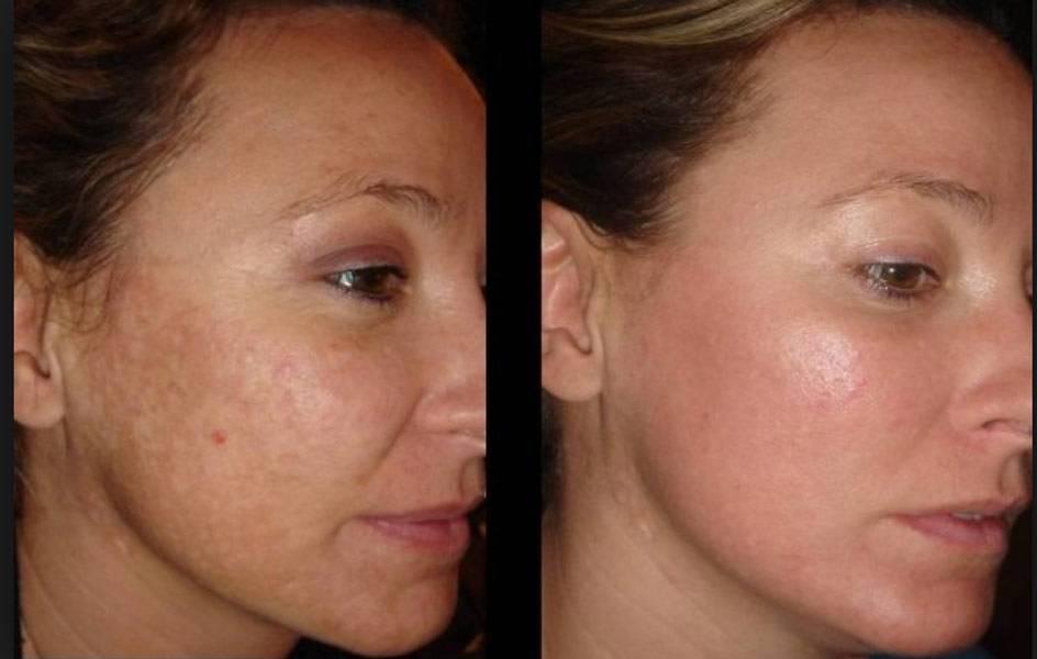 Энзимный пилинг, отзывы * tete в салоне, что это такое, фото до и после