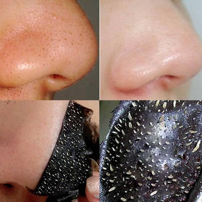 Какая чистка лица самая эффективная? виды чистки лица у косметолога   moninomama.ru