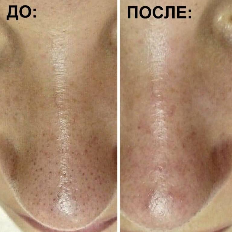 Чистка лица у косметолога: как делают в салоне