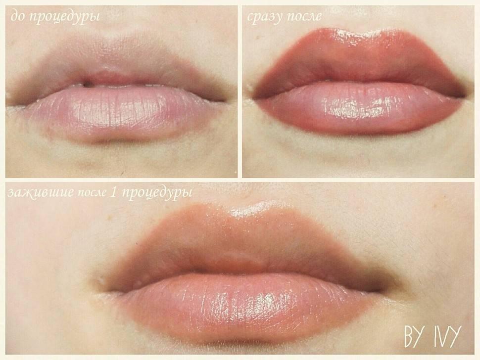 Перманентный татуаж губ: противопоказания, фото до и после