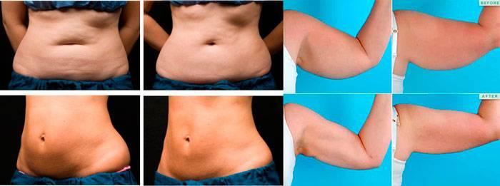 Криолиполиз: фото до и после- результаты и побочные действия +видео