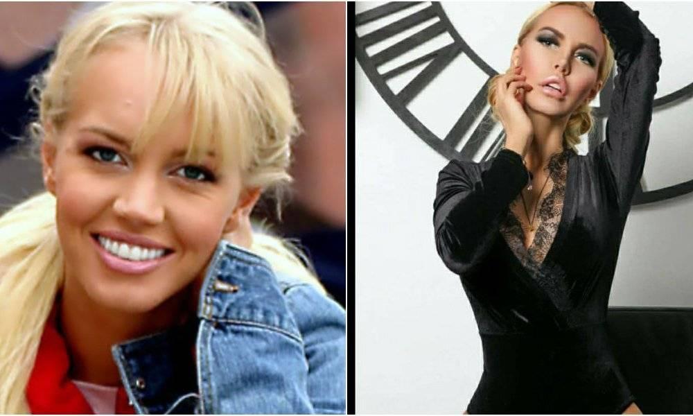 Маша малиновская - фото до и после ее хейлопластики, ринопластики, липосакции и пластики груди