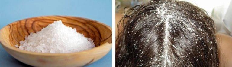Солевой пилинг для роста волос в домашних условиях.