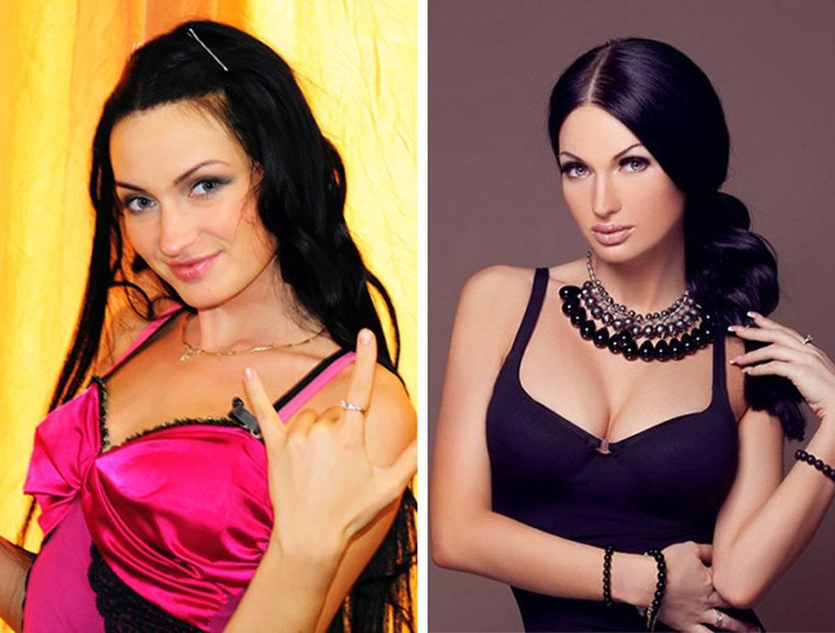 """Участники """"дома-2"""", сделавшие неудачную пластику: фото до и после, ринопластика - 24сми"""
