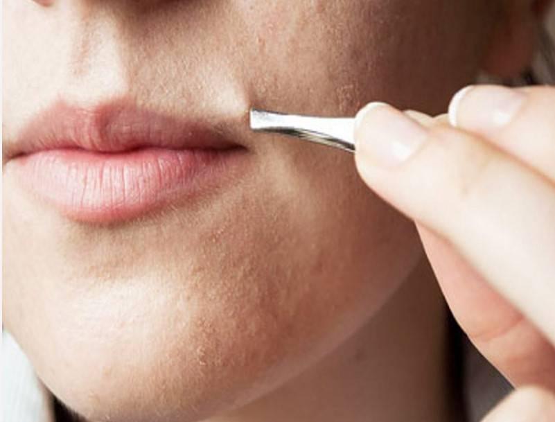 Как избавиться от усов у девушки в домашних условиях навсегда?