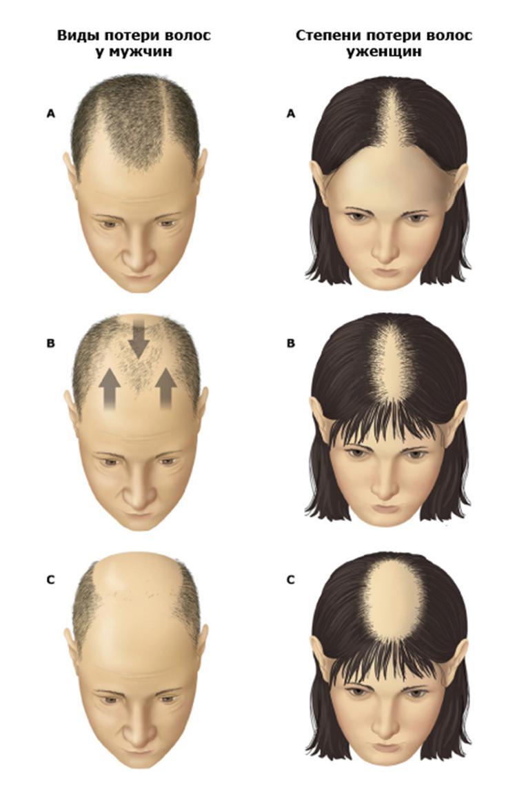 Выпадение волос у мужчин: признаки, причины, лечение, профилактика, как остановить выпадение волос?