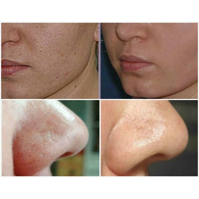 Ультразвуковая чистка лица: фото до и после, отзывы пациентов