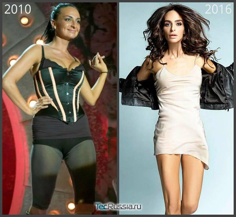 Как катя варнава похудела (рост, вес), фото до и после операции на нос