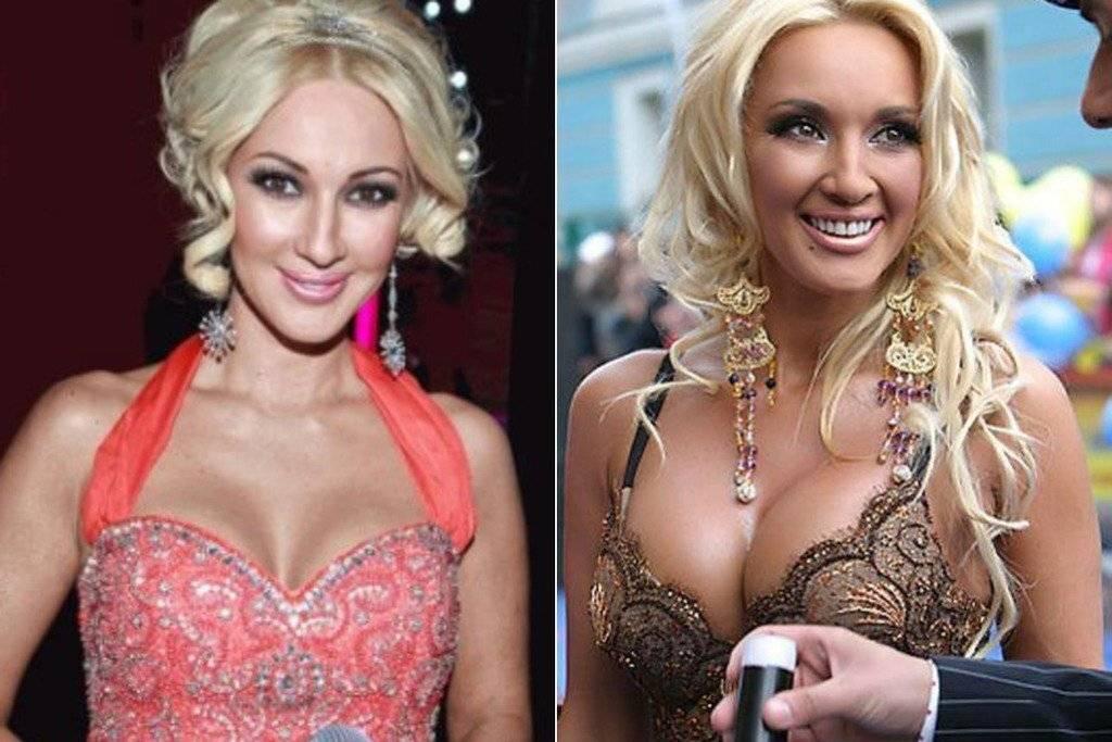 Звезды, увеличившие губы: фото до и после пластики губ российских и голливудских знаменитостей