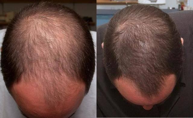 Генеролон спрей: как применять лекарство для волос по инструкции