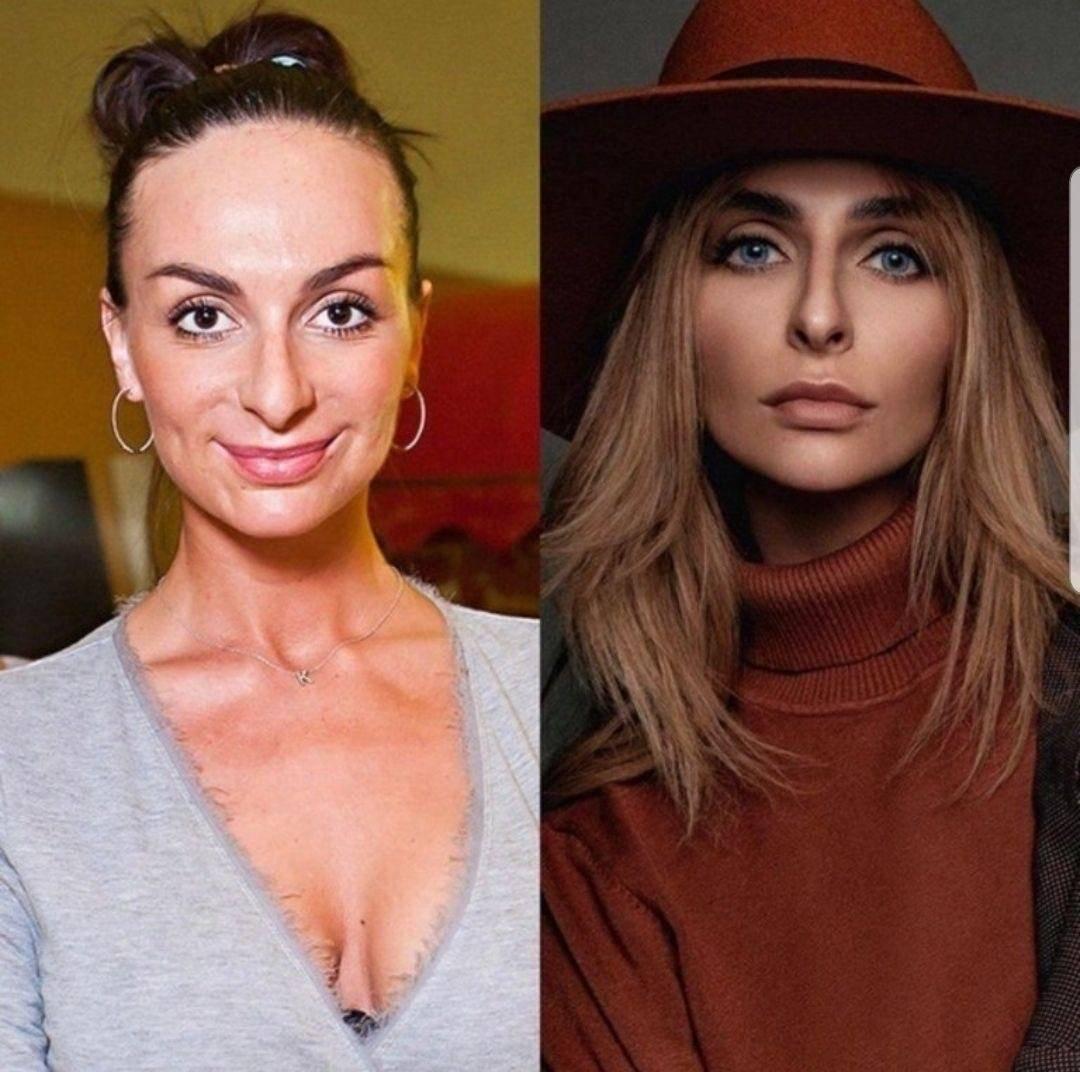 Екатерина варнава: фото до и после пластических операций. биография и личная жизнь.