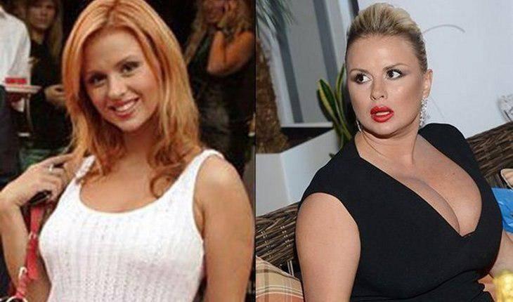 Российские знаменитости, помешанные на пластике, которых не узнать на старых фото
