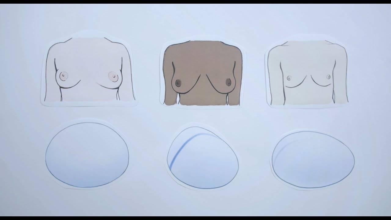 Формы женской груди   размер груди.ru