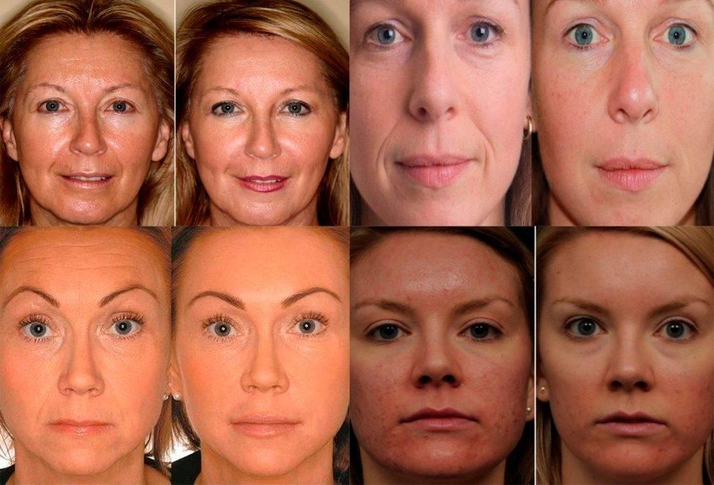 Ботокс для волос: процедура, отзывы, последствия, фото до и после