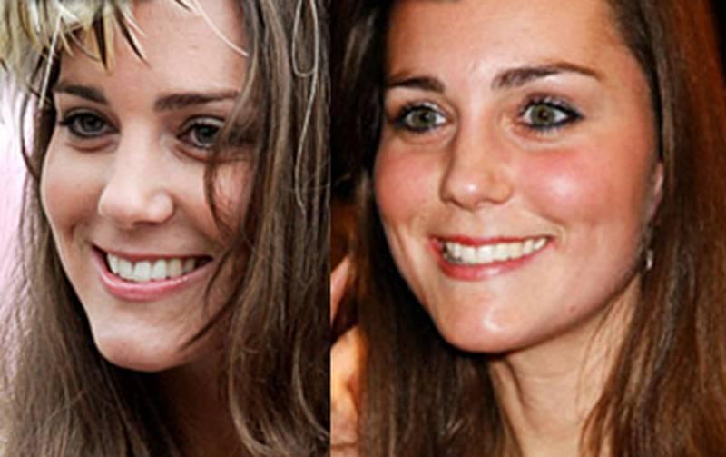 Кейт бекинсейл: фото до и после пластики - 300 экспертов.ру