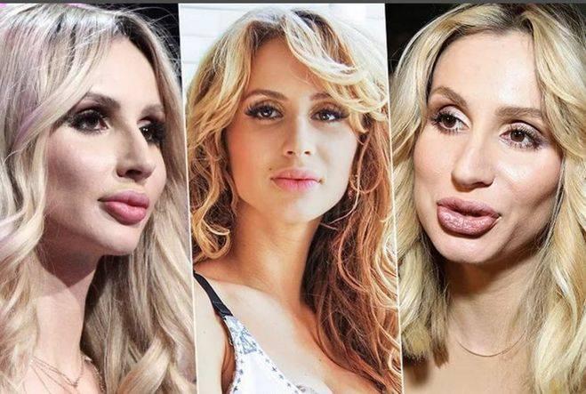 Необычная светлана лобода: до и после пластики, как меняла внешность певица