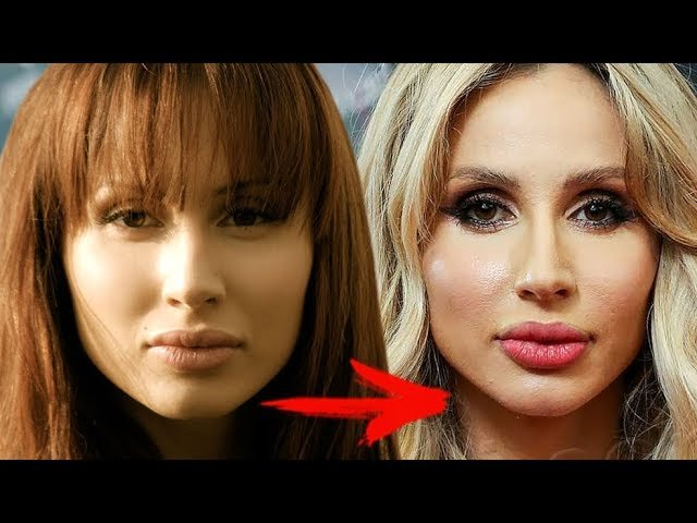Светлана лобода до и после пластических операций светлана лобода: как изменилась самая популярная певица украины – womanmirror