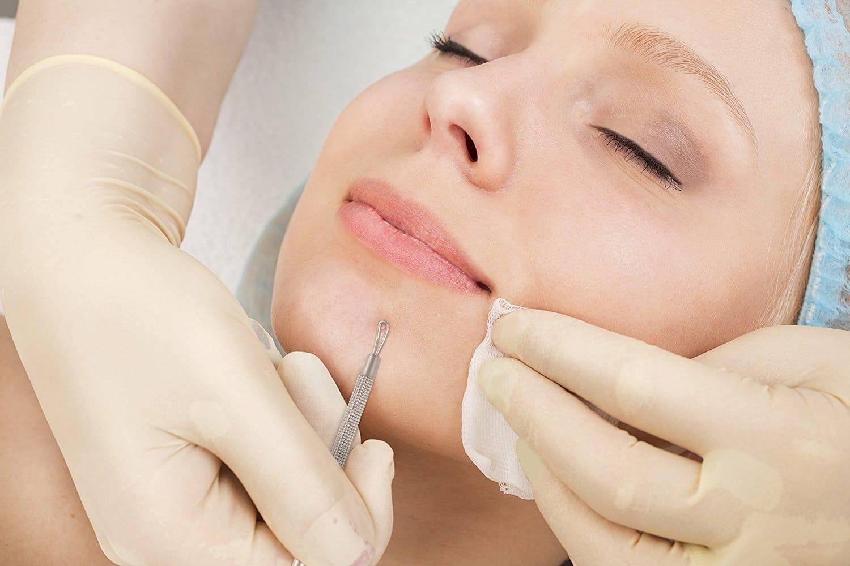 Нужна ли вам механическая чистка лица?