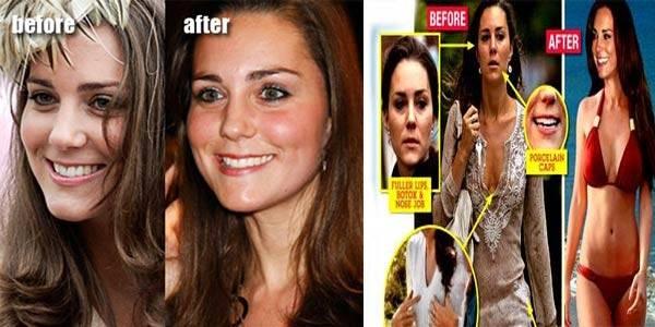 «счастливое лицо» кейт миддлтон и другие тренды пластической хирургии, на которые вдохновили звезды