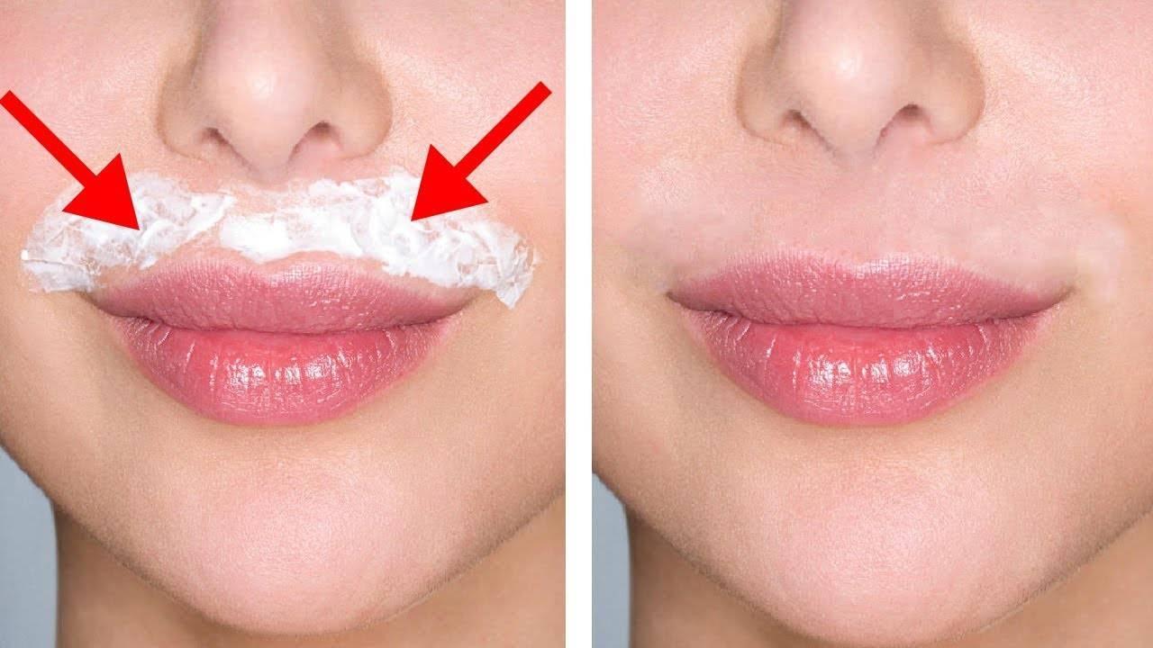Как убрать усики над губой, эффективные домашние способы