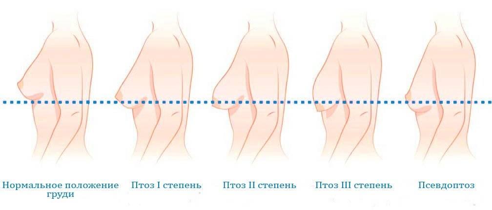 Какие бывают формы женской груди?