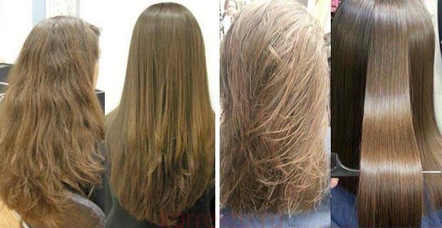 Ботокс после окрашивания волос или перед ним: можно ли делать одну процедуру сразу за другой или лучше провести ее через определенное время и какое именно?