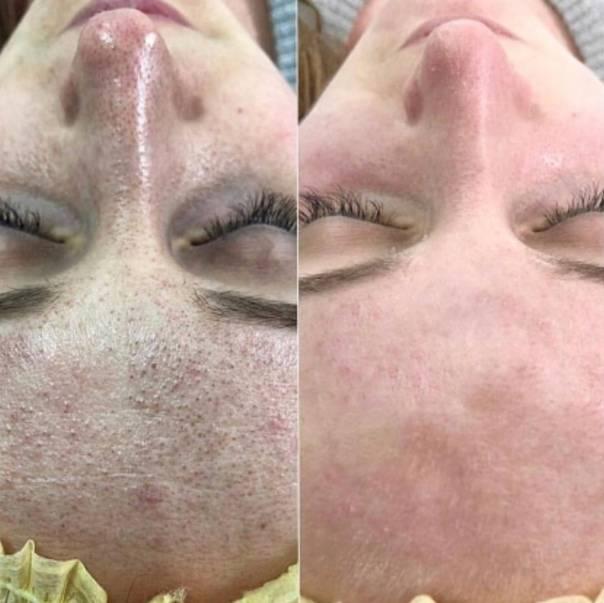 Можно ли делать чистку лица летом? почему нельзя, советы косметолога, как чистить в салоне