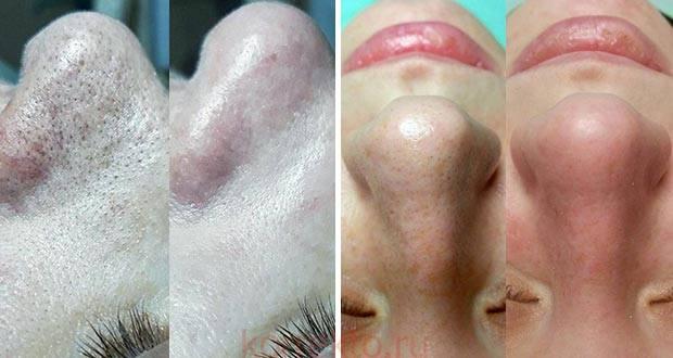 Чистка лица от черных точек в салоне * какая процедура самая эффективная
