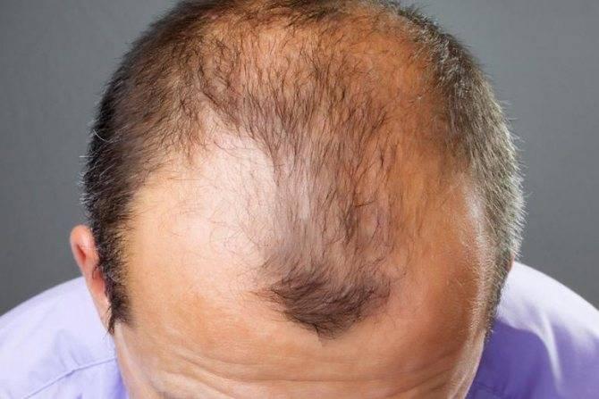 Могут ли из за простатита выпадать волосы какими препаратами лучше всего лечить простатит