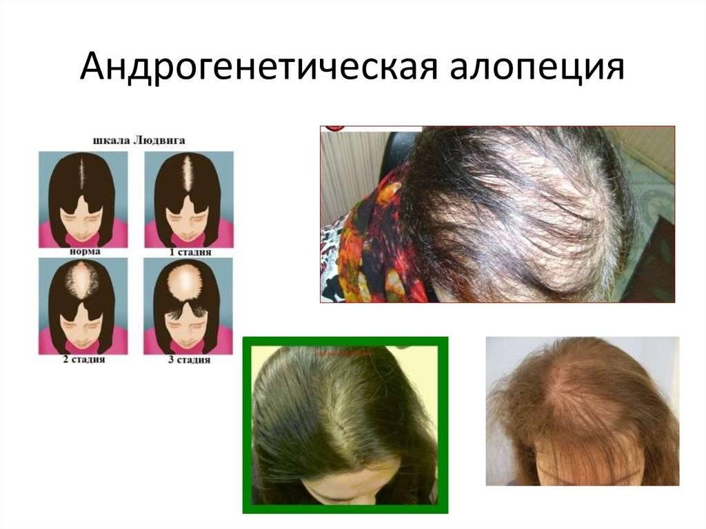 Выпадения волос у девушек — причины и способы лечения