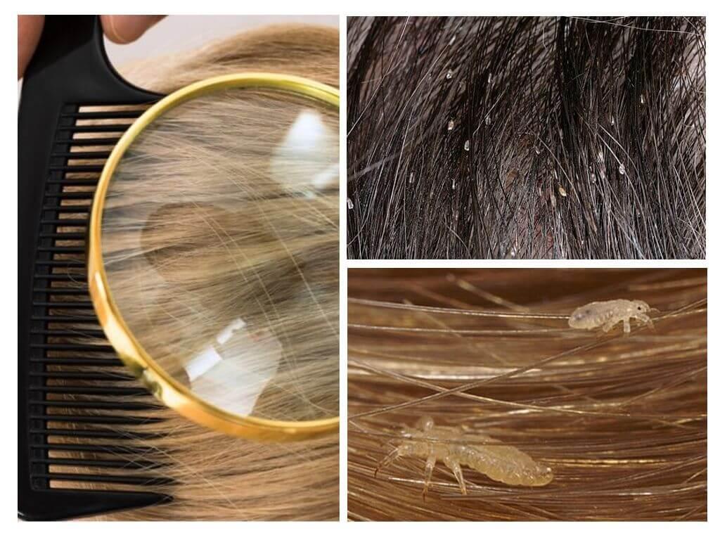 Как убрать гнид с волос быстро: советы и рекомендации