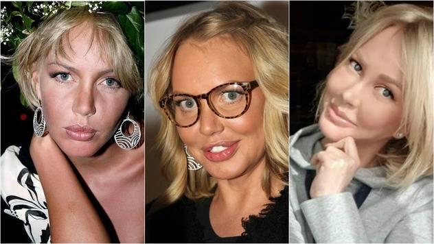 Маша малиновская: 10 фото до и после пластических операций