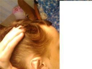 Что делать, если у подростка выпадают волосы?   компетентно о здоровье на ilive