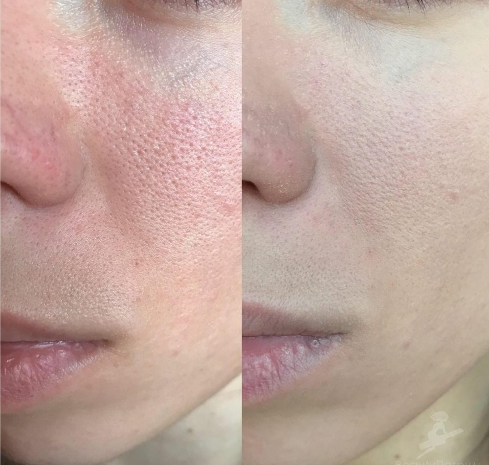 Энзимный пилинг лица: топ-27 готовых препаратов для применения в салоне и дома