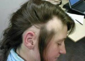 Почему выпадают волосы у подростка-девочки – основные причины и способы лечения