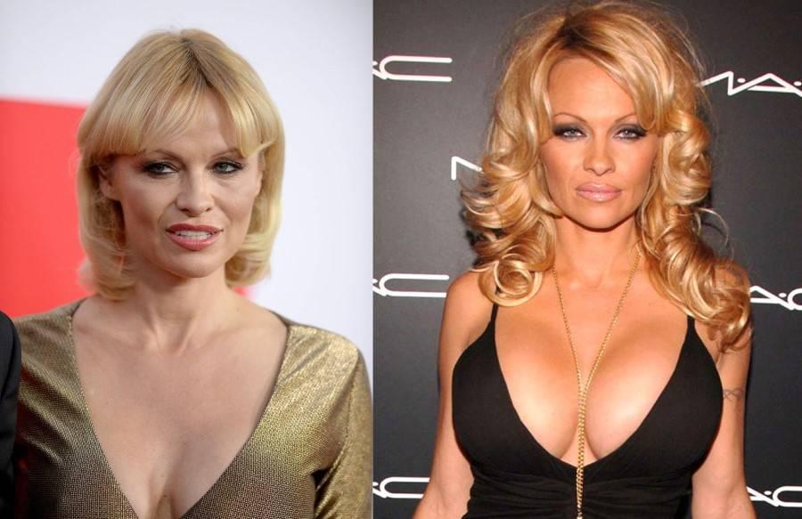 Стоит ли увеличивать грудь: за и против операции маммопластика | dlja-pohudenija.ru